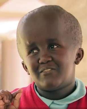 Adolescente com hidrocefalia conta como superou bullying e decidiu virar cantora