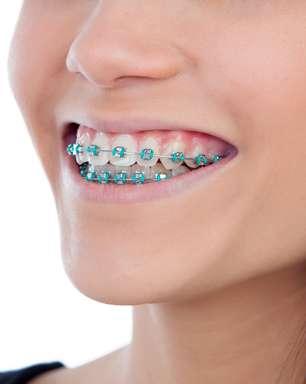 ENQUETE: Aparelho só pode usar com dente permanente?