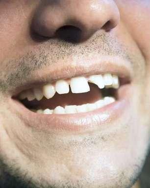 Dossiê dente quebrado: descubra o que fazer e como cuidar