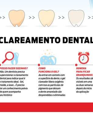 Clareamento dental: o manual definitivo em infográfico