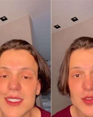 Saulo Poncio e Safadão têm polêmica com harmonização facial