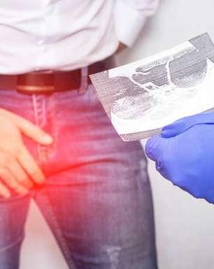 Os cuidados e os sintomas do câncer de testículo