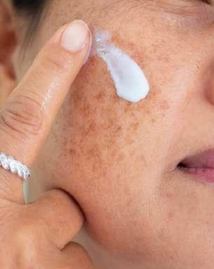 Melasma: Doença crônica causada pela exposição solar tem tratamento