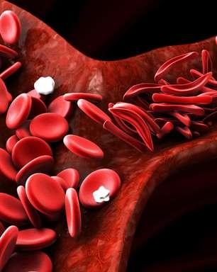 Conheça os sintomas e o tratamento da doença falciforme