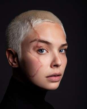 """""""As cicatrizes são parte de mim, são minha força"""", diz modelo"""