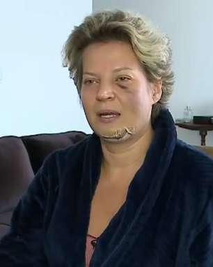 Polícia Legislativa investiga denúncia de Joice Hasselmann