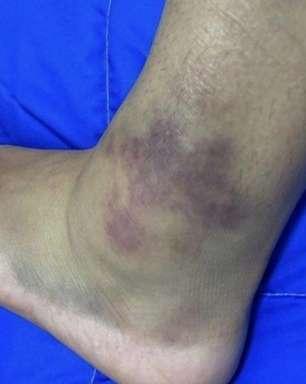 Pâmela Rosa posta foto assustadora do tornozelo após eliminação no skate: 'Fui até onde consegui'
