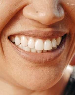 Uau! Os procedimentos estéticos que transformam o sorriso