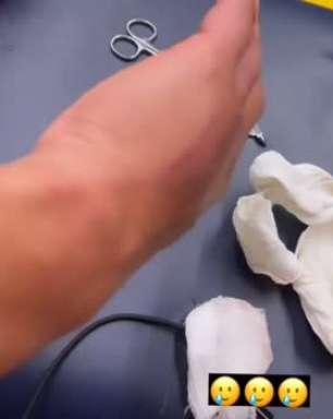 ATLÉTICO-MG: Hulk mostra 'estrago' na mão após pisão de adversário