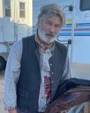 """""""Meu coração está partido"""", diz Baldwin sobre acidente no set"""