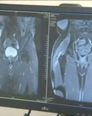 Homem recupera mobilidade após transplante de músculos