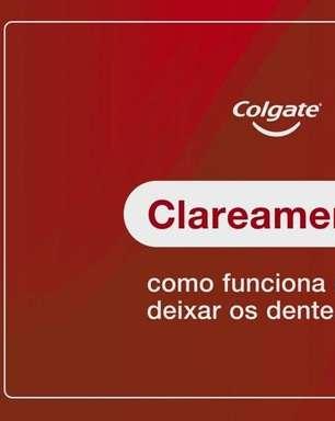 Como Funciona o Clareamento Dental?
