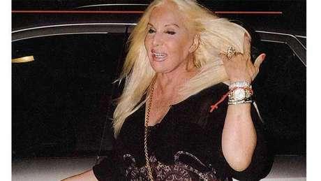 Susana Giménez fue fotografiada sin Photoshop luego de su última operación de cuello y nariz. Fuente: Revista Pronto