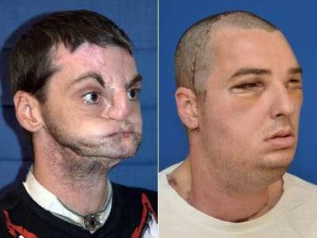 Norris tenía 22 años cuando un accidente con un arma de fuego le dejó con el rostro hundido y sin labios, nariz y la parte delantera de la lengua.