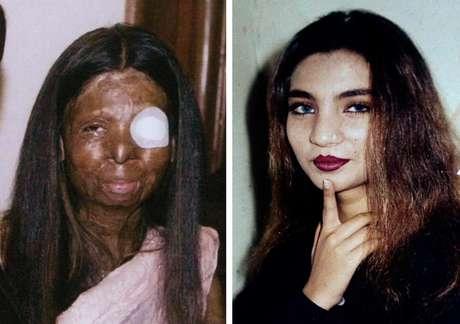 Dos fotografías de Fakhra Younus antes y después de que le arrojara ácido en el rostro y cuerpo su esposo, un ex legislador e hijo de un poderoso polìtico hace doce años.