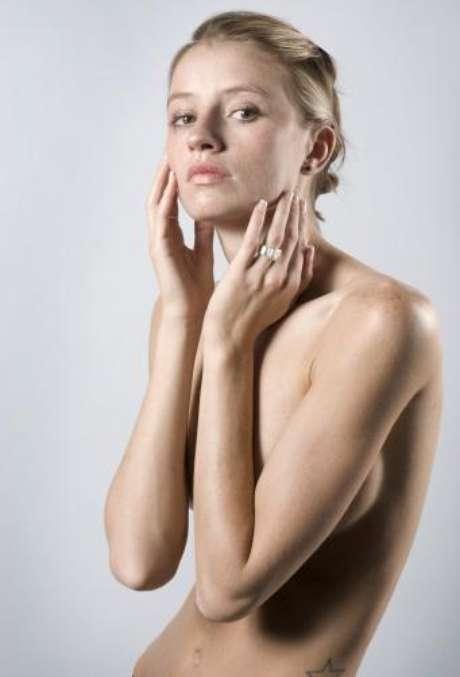 Los ungüentos inofensivos de atopicheskogo de la dermatitis