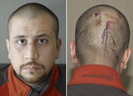 Medios estadounidenses revelaron un informe médico de George Zimmerman, realizado el día siguiente al incidente, que documenta que el vigilante presentaba cortes en la cabeza y tenía la nariz rota tras el incidente con el menor.
