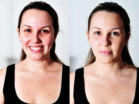 Aprender a disfarçar as imperfeições é uma boa tática para garantir um aspecto mais homogêneo na pele