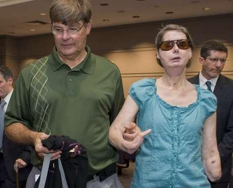 Charla Nash, quien fue atacada por un chimpancé de 200 libras en el 2009 reapareció el pasado viernes en una corte de Connecticut, donde se llevó a cabo una audiencia para decidir si podrá demandar al estado por 150 millones de dólares.