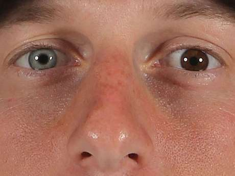 Max Scherzer, jogador norte-americano de basebol, tem uma grande diferença nas cores dos olhos