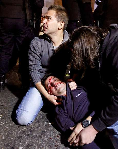 Un herido en la carga policial del 25S en Madrid