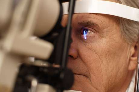 Segundo um estudo americano, o consumo excessivo de café com cafeína está ligado a um risco maior de desenvolvimento de glaucoma
