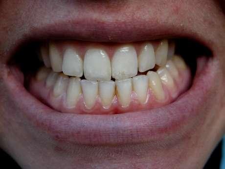 Muitas pessoas apertam e rangem os dentes enquanto dormem, um problema progressivo que pode desgastar e até mesmo amolecer os dentes.