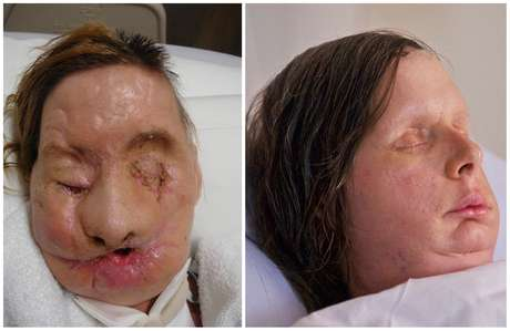 Charla Nash was attacked in February 2009, when her friend's 200-pound chimpanzee went on a rampage and ripped off her nose, lips, eyes and hands.
