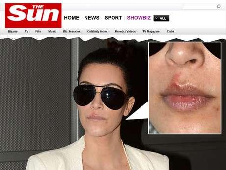 Kim Kardashian não conseguiu disfarçar as feridas nos lábios