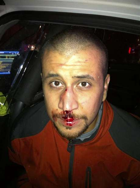 George Zimmerman is seen in this February 26, 2012 police photo provided by the George Zimmerman legal defense fund.