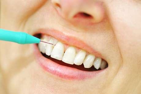 da6384686 O fio dental e a escova interdental chegam a lugares que a escova não  alcança e