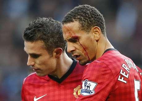 El defensa del Manchester United Rio Ferdinand fue alcanzado este domingo por una moneda, lanzada desde la grada en los últimos minutos del derbi ganado por su equipo en el terreno del Manchester City (3-2), y abandonó el terreno de juego con el rostro ensangrentado.