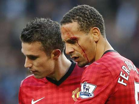 Rio Ferfdinand was left cut and bleeding after a fan hit him with a coin during Manchester United's 3-2 win over Manchester City in the derby Sunday.