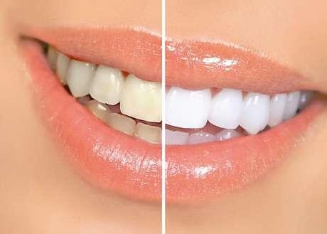 Existe un blanqueamiento endógeno, realizado dentro del diente