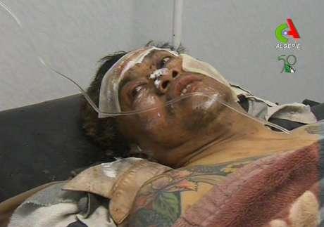 Una persona no dentificada que estaba como rehén recibe atención médica después de que resultara herida durante una operación militar contra extremistas islámicos en una planta de gas en Argelia, el viernes 18 de enero de 2013.