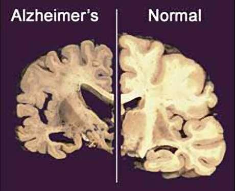 Esta imagen sin fechar suministrada por Merck & Co., muestra la sección transversal de un cerebro normal a la derecha y la de un cerebro dañado por la enfermedad de Alzheimer a la izquierda.