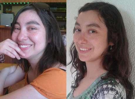"""<span style=""""font-family: arial, sans-serif; font-size: 13px;"""">Tamara. La foto de la izquierda es de octubre del 2011 cuando estaba con el tratamiento completo (corticoides en dosis altas). La imagen de la derecha es de un año después, con dosis baja de medicamentos y Lupus controlado, en """"remisión"""" (enfermedad está inactiva).</span>"""