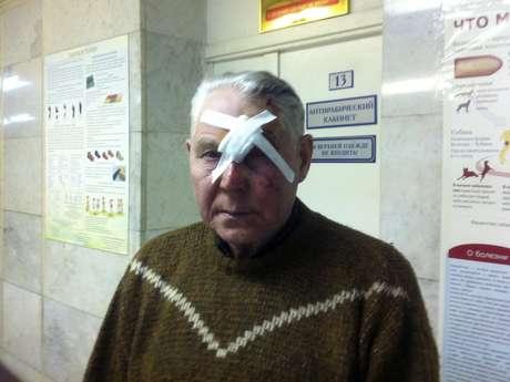 <p>Homem foi socorrido após ser atingido por estilhaços de vidro na região de Urals</p>