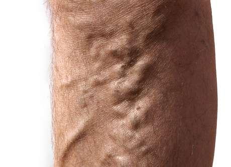 <p>Las várices son una dilatación venosa que con frecuencia aparecen en las piernas.</p>