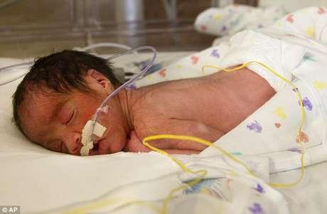<p>Blaine Montalvo, el segundo de los bebes, pesó 3 libras y 15 onzas.</p>