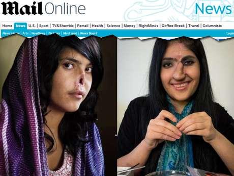 Aos 19 anos, Aisha se tornou um símbolo da opressão contra as mulheres no Afeganistão