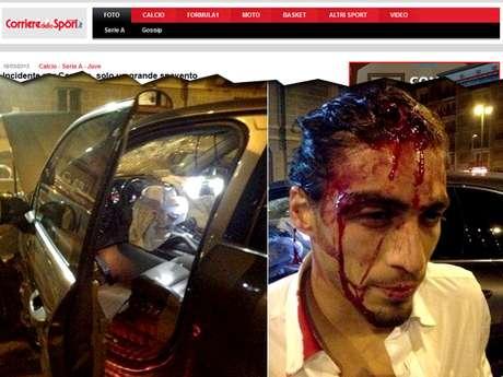 Imagem mostra rosto ensanguentado de Cáceres após acidente nas ruas de Turim
