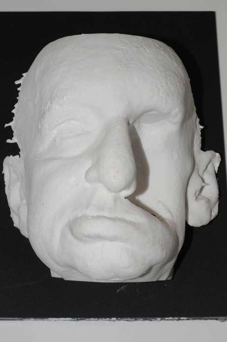 <p>Modelo do paciente produzido em nylon</p>