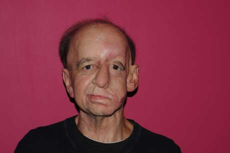 <p>Eric Moger&nbsp;recebeu pr&oacute;tese facial para cobrir depress&atilde;o causada por um tumor maligno</p>