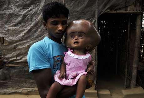 <p>A menina de 18 meses sofre de hidrocefalia, uma doença rara que é definida pelo aumento do volume do espaço contendo fluido cerebrospinal</p>