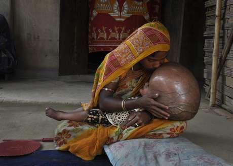 A menina vive no pobre estado de Tripura (nordeste) com seus pais, que não têm condições para internar e tentar uma operação