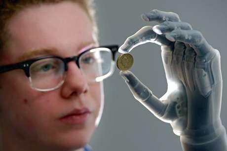 Patrick Kane, 16 anos, apresentou recentemente seu braço biônico, que permite uma variedade de movimentos bastante específicos - como apertar e segurar objetos