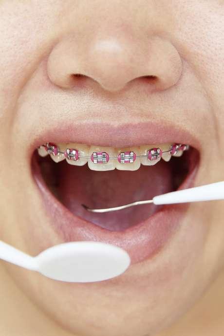 Es normal tener mal aliento por los aparatos dentales - Como alinear los dientes en casa sin brackets ...
