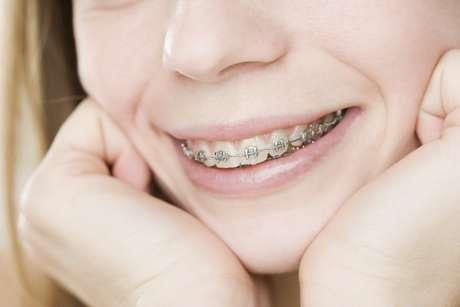 La ortodoncia reduce el riesgo de desarrollar infecciones bucales