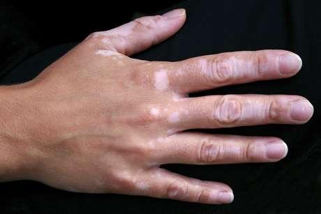 <p>A técnica de repigmentação serve também para tratar o vitiligo</p>